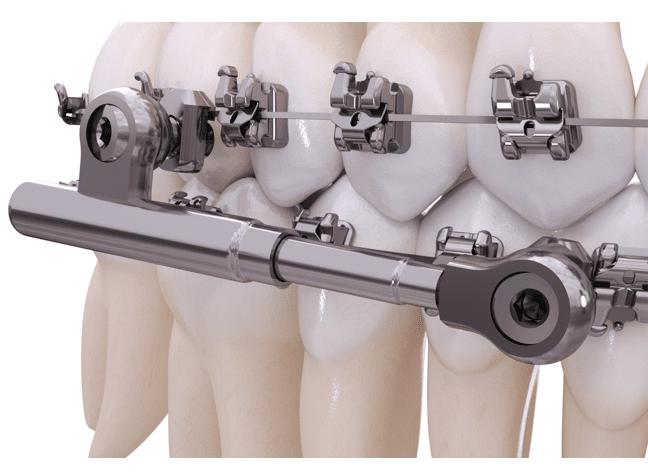 American Orthodontics Introduces PowerScope Class II Corrector