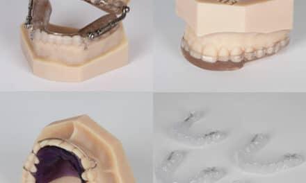 Sirona Announces CEREC Software for Orthodontics