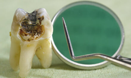 Ancient Genetic Material from Caries Bacterium Obtained for the First Time