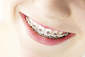 Global Report Shows Future Growth for Orthodontic Supplies Market