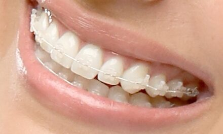 TP Orthodontics Introduces ClearVu Cosmetic Brackets