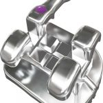 Ortho Technology Introduces Pinnacle SS Bracket System
