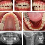 Non-Surgical Correction of a Skeletal Class II Anterior