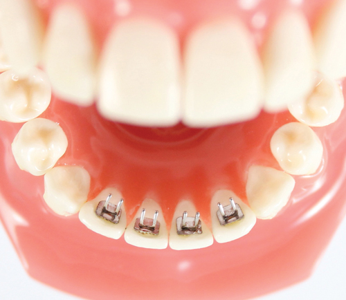 Action Orthodontics Introduces Tongue Trainers