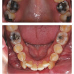 A Case for Extractions