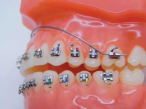 G&H Orthodontics Introduces TitanMoly Archwires