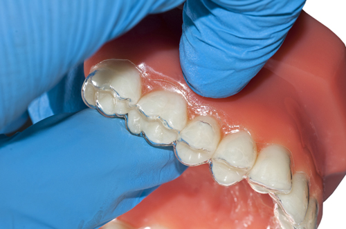Ramping Up Your Aligner Cases