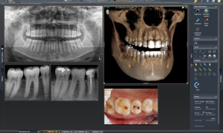 Dentsply Sirona Updates SIDEXIS 4 Imaging Software