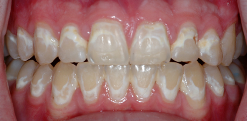 Effective Strategies to Reduce White Spot Lesions for Orthodontic Practices