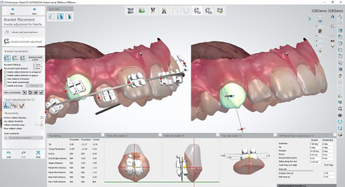 3Shape Ortho System Software with IDB Bracket Workflow Receives FDA 510(k) Market Clearance