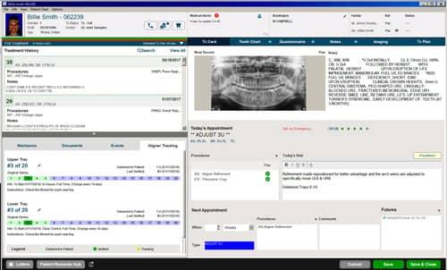 Carestream Dental Releases CS OrthoTrac v14