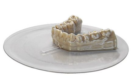 3D Printing and In-house Aligners