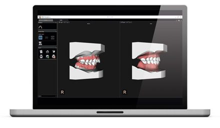 Carestream Dental Automates the Orthodontic Workflow with CS Model+ Software