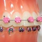 G&H Orthodontics Offers Pink Flower DesignerTies