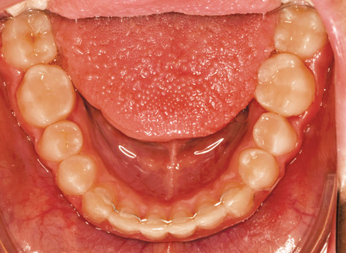 Retainers: Where We've Been, Where We Are Today, and Why It All Matters