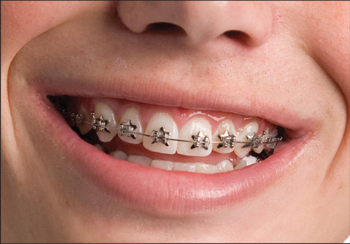 WildSmiles Offers Star DesignerBraces