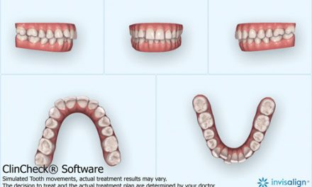 Maxillary Impaction with Aligners, TADs, and Low Pulsatile Forces