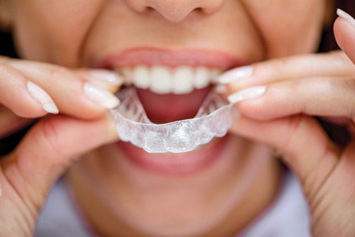 Ten Signs of Aligner Non-Compliance