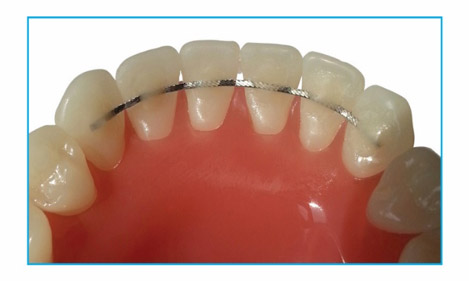 DB Orthodontics Now Offers Nickel Free Straight 8 Lingual Retainer Wire