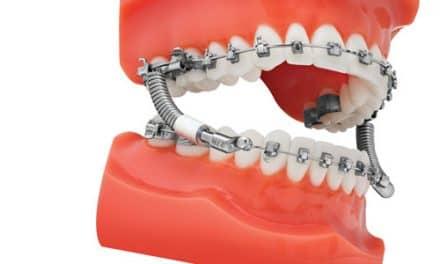 TP Orthodontics Introduces the VektorPRO Class II Corrector