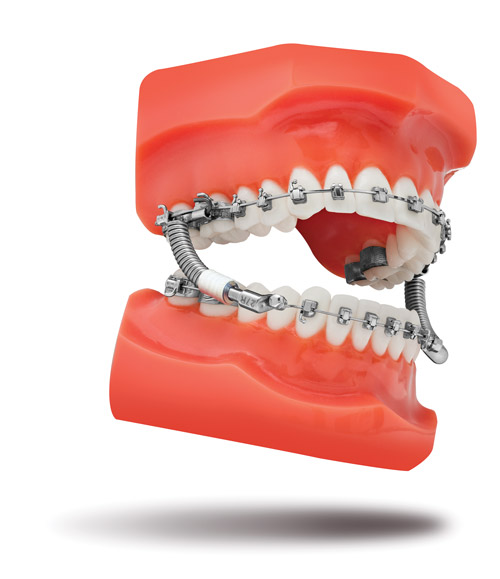 TP Orthodontics Introduces the VektorPRO Class II Corrector