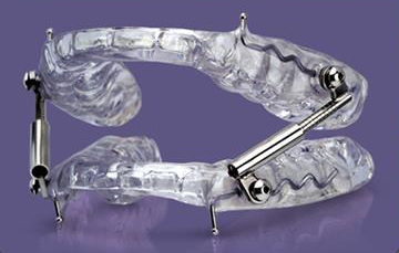 Glidewell Dental Introduces New Mandibular Advancement Device
