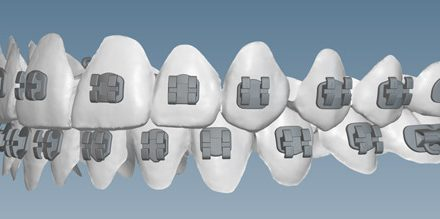 KLOwen Custom Braces System Enters Orthodontic Market