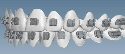 KLOwen Custom Braces System Enters Orthodontic Market
