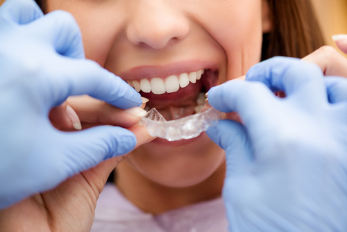 uLab Systems Roles out New Version of its Orthodontic Aligner Planning Software