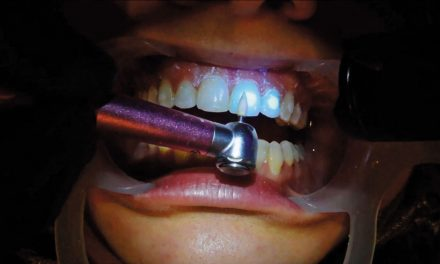 Comparing Two Orthodontic Adhesives
