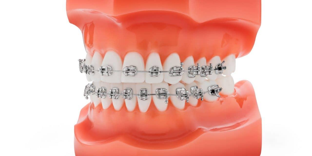 TP Orthodontics Introduces Pre-Coated Nu-Edge NX Brackets