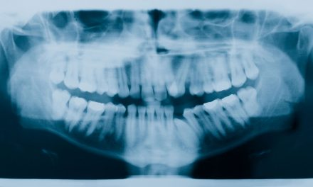 California Law First to Require X-rays for Direct-to-Consumer Orthodontic Patients