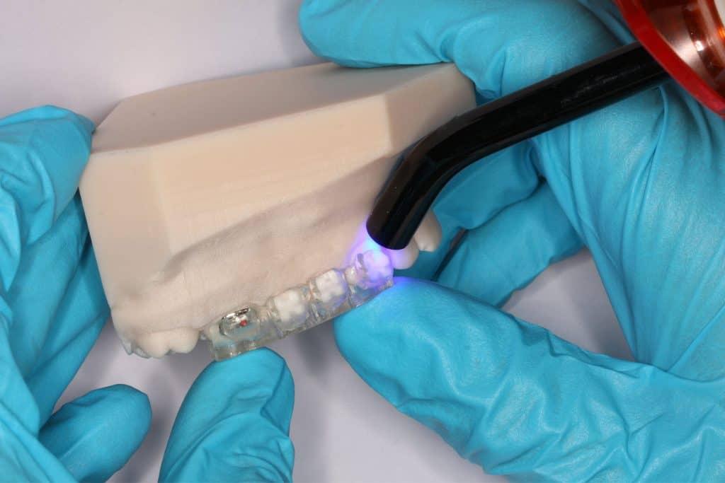 LightForce-ntopology-bonding-bracket