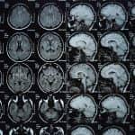Study Examines MRI Brain Imaging in Participants with Metallic Orthodontic Braces