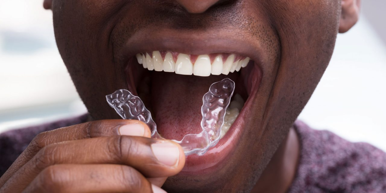Dr Eric Wu to Host In-House Aligners Course in 2020