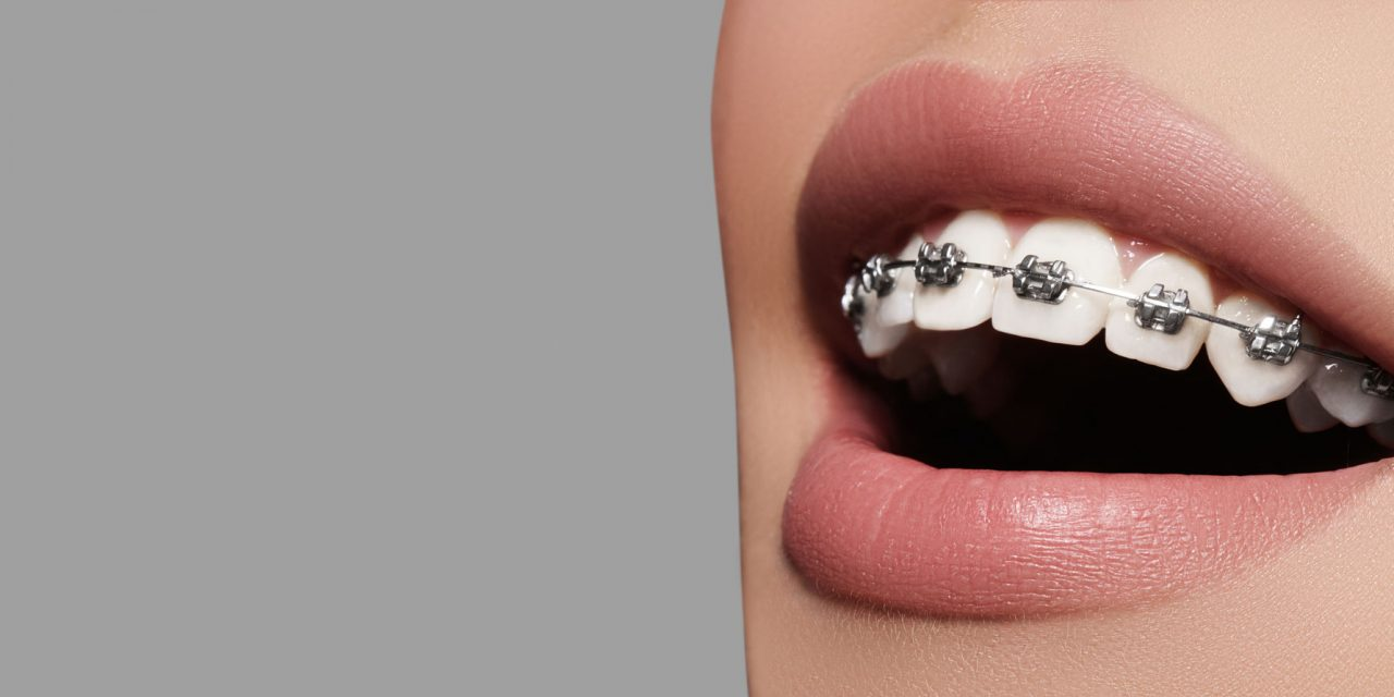 Schulman Study Group Re-forms as Member-Owned Orthodontic DSO