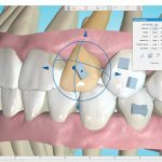 Ormco Upgrades Spark Clear Aligner Approver Software and Portal
