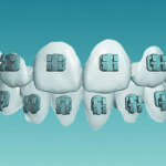 AAO Announces KLOwen Braces Investment, as Support for Orthodontic Innovation Continues