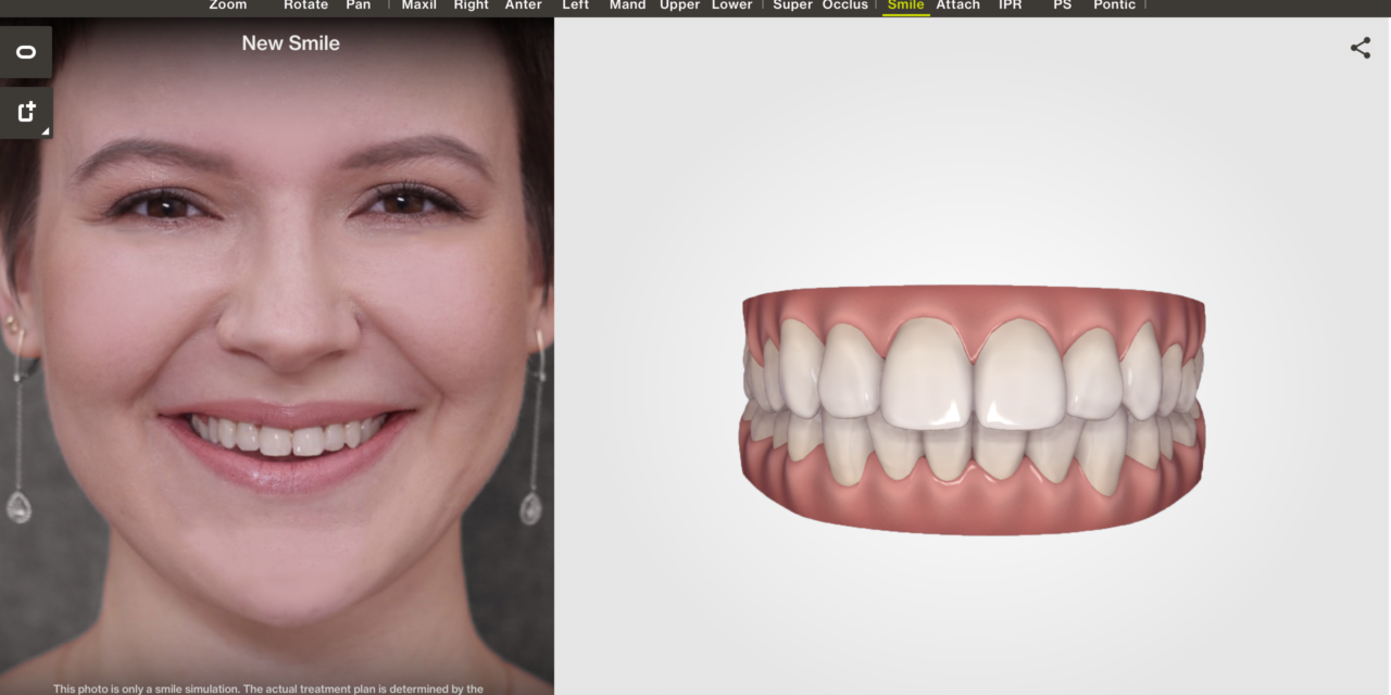 Align Technology Offers Clincheck 'In-Face' Visualization Tool For Invisalign Go System