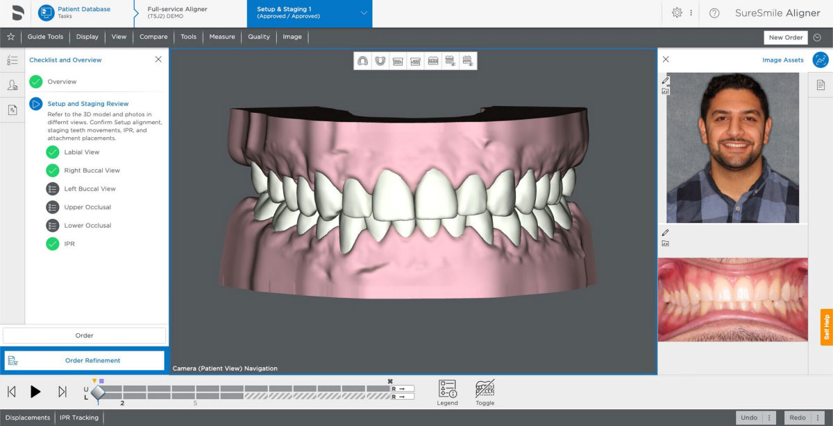 First Look at SureSmile 7.6 Showcases More Clinician Controls
