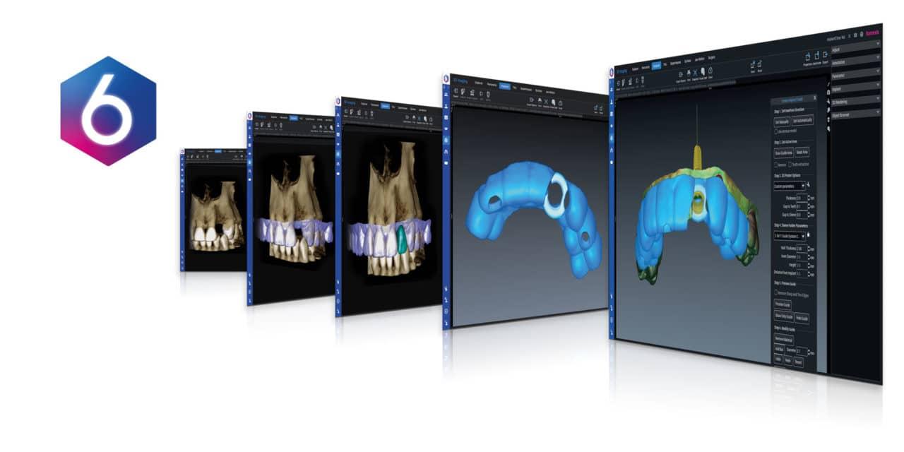 Planmeca Releases Redesigned Planmeca Romexis 6.0 Imaging Software