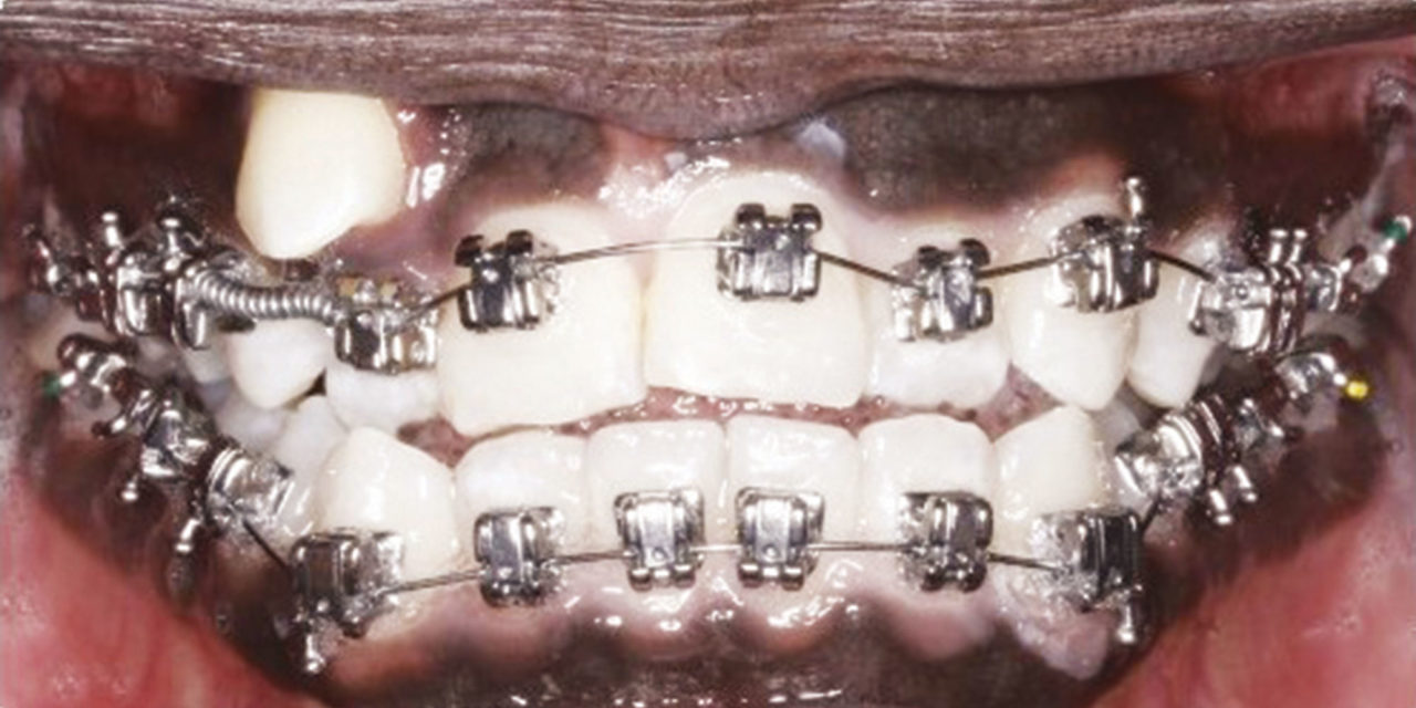 10 Clinical Tips For Non Extraction Treatment Orthodontic Products