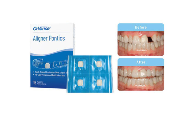 OrVance Launches Aligner Pontic Solution for Patient Use