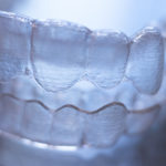 Top 10 Considerations when Performing Aligner Setups