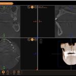 XVWeb Cloud Dental Imaging Recognized as 2020 Best of Class Technology Award Winner
