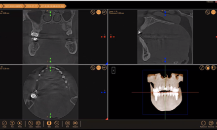 XVWeb Cloud Dental Imaging Recognized as 2020 Best of Class Technology Award Winner