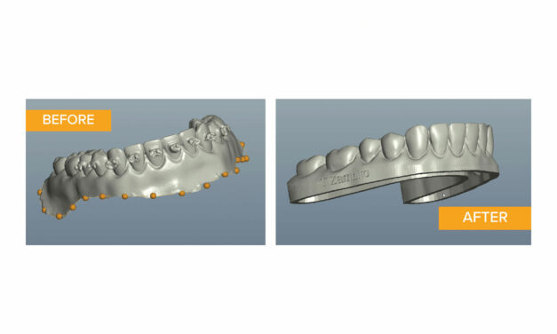 Webinar: How to Use EasyRx Software to Prepare Your Models and 3D Print In-House