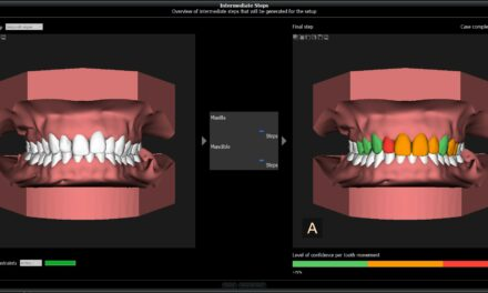Carestream Dental Launches CS Model+ 5 for In-House Aligners
