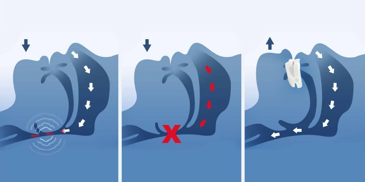 Dentsply Sirona and Panthera Collaborate on Custom Digital Sleep Devices