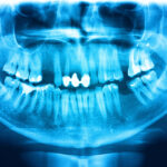 A Return to the Basics of Panoramic Radiography with Upcoming Carestream Dental Webinar